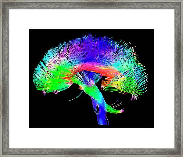 Brain Pathways Framed Print