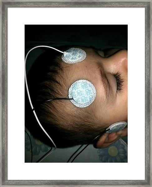 Brainstem Evoked Response Audiometry Framed Print