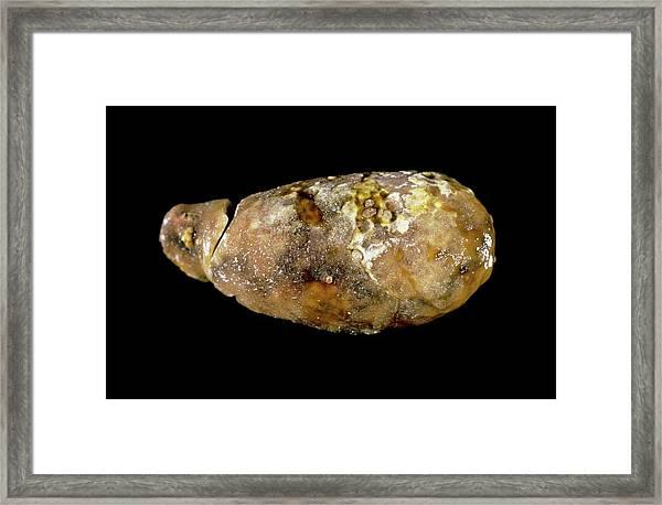 Calcified Gallbladder Framed Print by Cnri