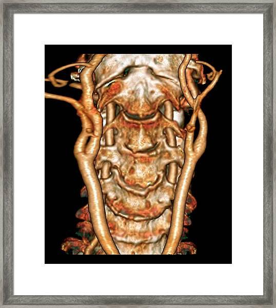 Cervical Spine And Arteries Framed Print