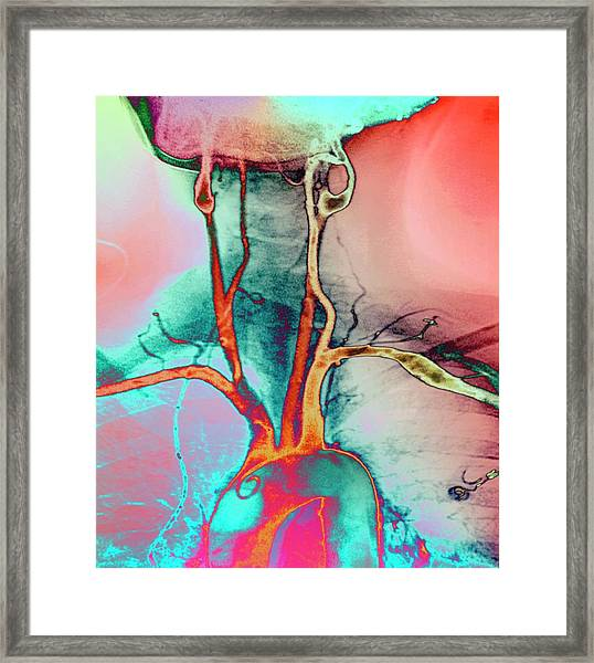 Chest And Neck Arteries Framed Print