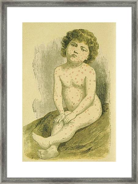 Child With Measles Framed Print