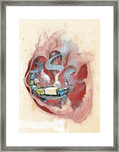 Clogged Heart Framed Print by Fanatic Studio / Science Photo Library