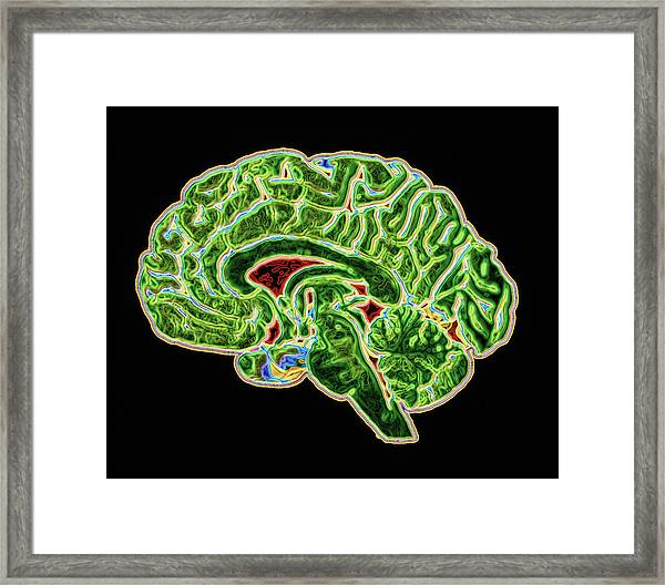 Coloured Ct Scan Of A Healthy Brain (side View) Framed Print