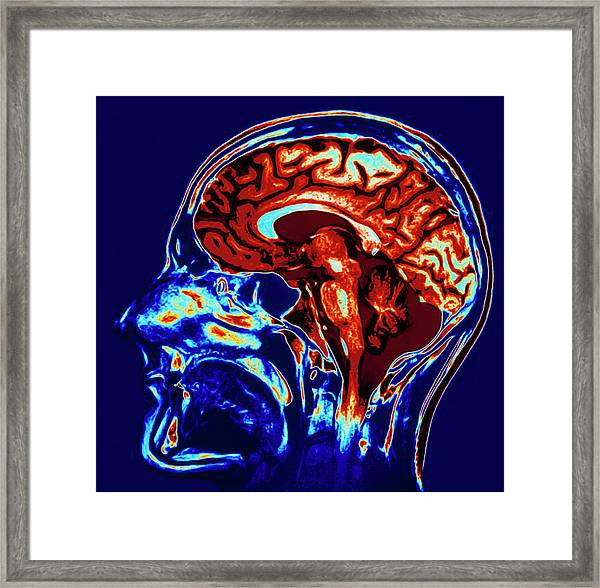 Coloured Mri Scan Of Brain In Sagittal Se Framed Print by Geoff Tompkinson