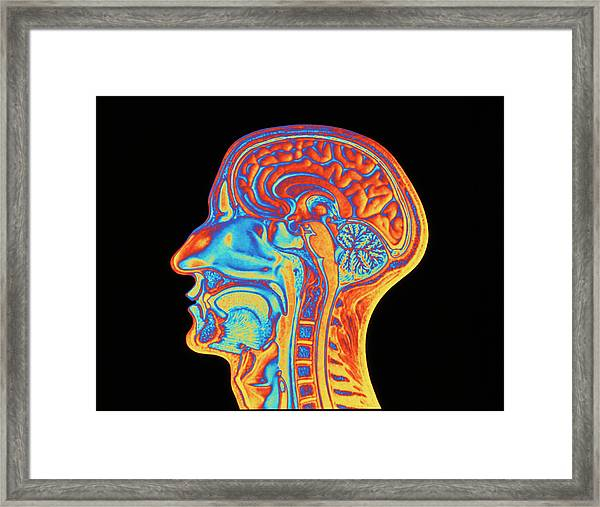 Coloured Mri Scan Of The Human Head (side View) Framed Print
