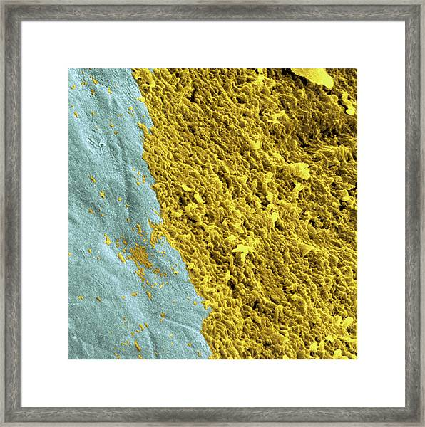 Coloured Sem Of A Dental Plaque Seen On A Tooth Framed Print by Dr Tony Brain/science Photo Library