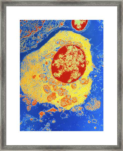 Coloured Tem Of Plasma Cell From A Lymph Node Framed Print by Science Photo Library