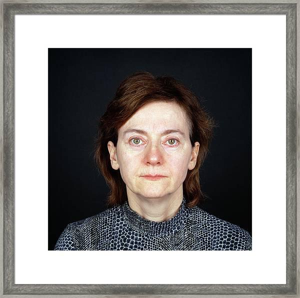 Cosmetic Eyelid Surgery Framed Print