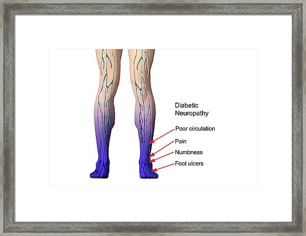 Diabetic Neuropathy Framed Print by Carol & Mike Werner