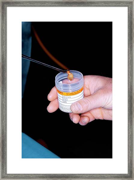 Excised Nasal Polyp Framed Print by Dr P. Marazzi/science Photo Library