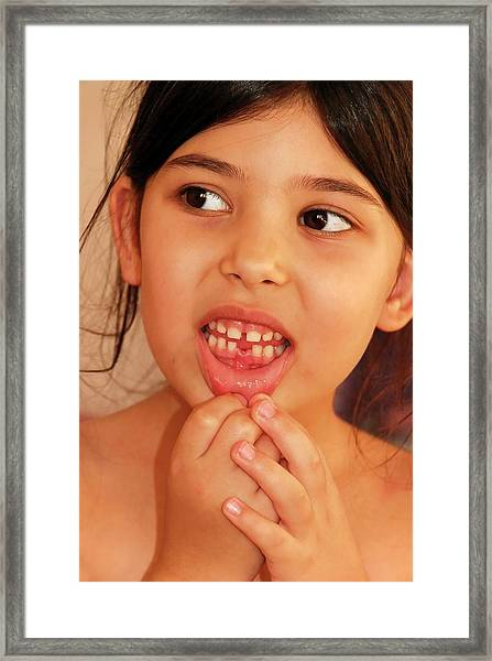 Girl With Missing Tooth Framed Print