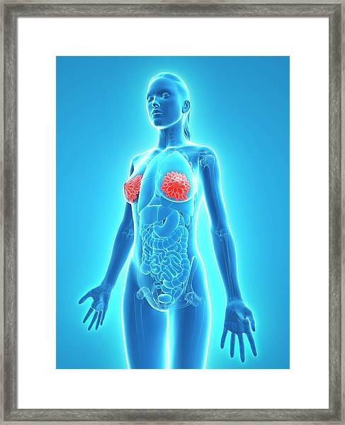 Healthy Breasts Framed Print