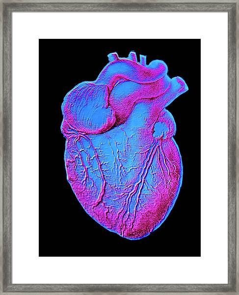 Heart Artwork Framed Print by Alain Pol, Ism/science Photo Library