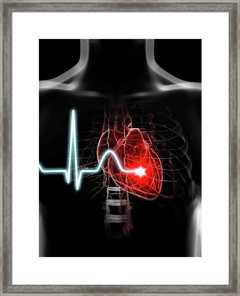 Heartbeat Framed Print by Sciepro/science Photo Library
