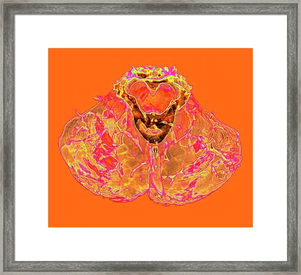 Human Cerebellum Framed Print