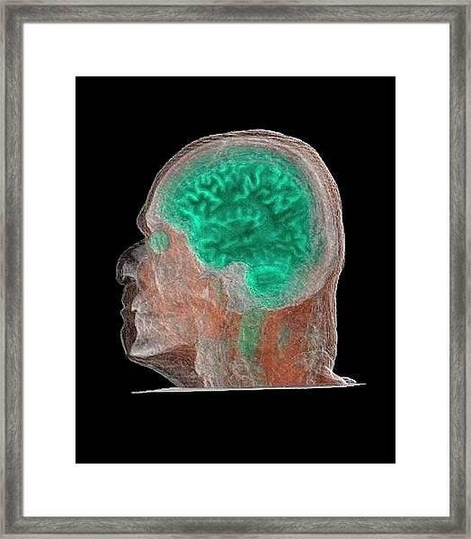 Human Head And Brain Framed Print