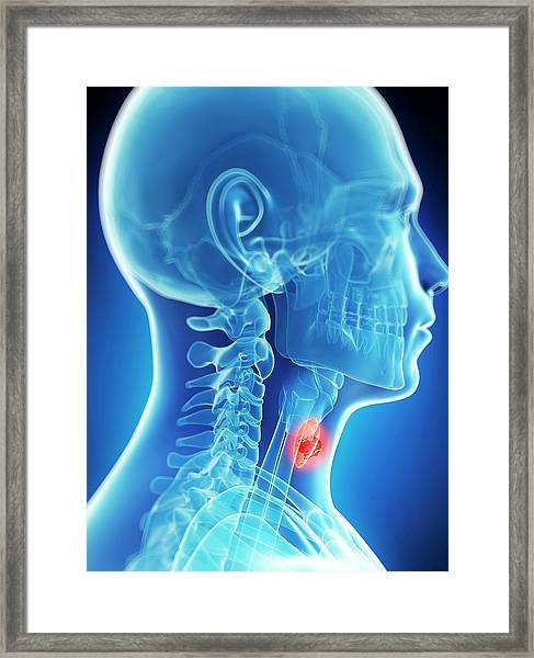 Human Thyroid Cancer Framed Print by Sebastian Kaulitzki