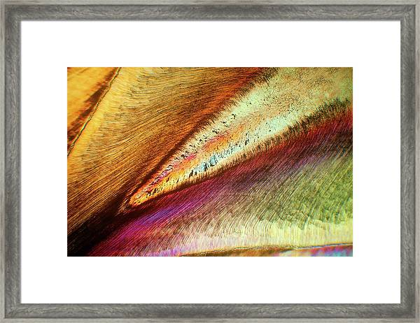 Human Tooth Framed Print by Steve Lowry