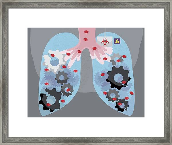 Illustration Of Human Lungs Infected By Virus Framed Print by Fanatic Studio / Science Photo Library