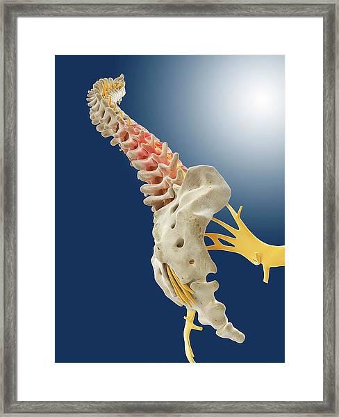 Lower Back Pain Framed Print