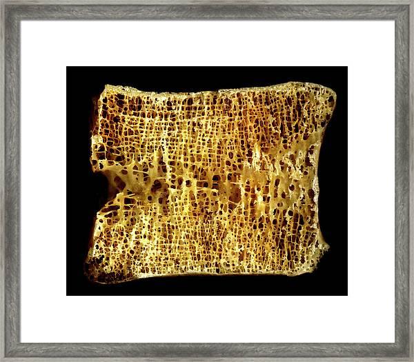 Lumbar Vertebra Framed Print by Medimage/science Photo Library