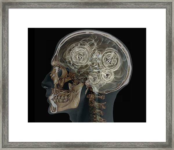 Mechanical Brain Framed Print by Zephyr/science Photo Library