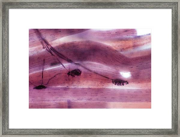 Motor Nerve Ending Framed Print by Microscape