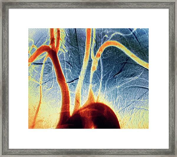 Narrowed Artery Framed Print