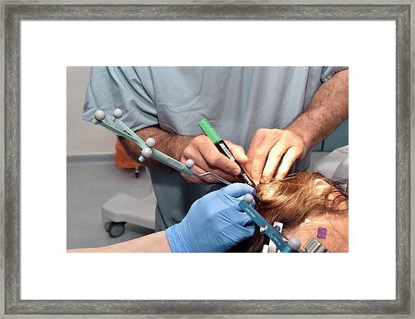 Navigated Brain Stimulation Surgery Framed Print