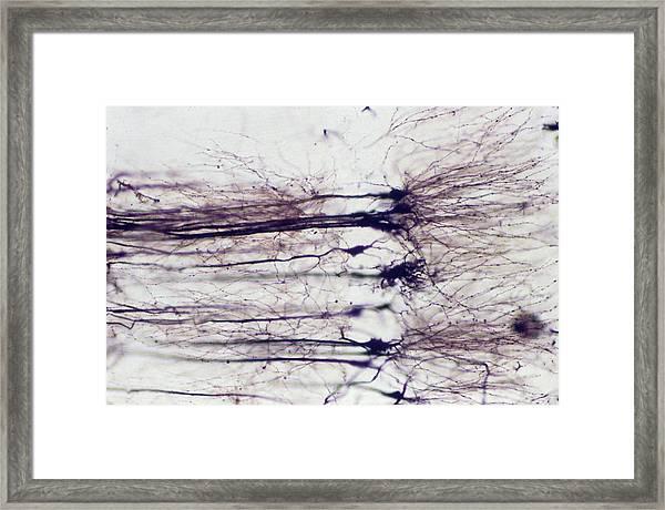 Nerve Cells Framed Print by Overseas/collection Cnri/spl