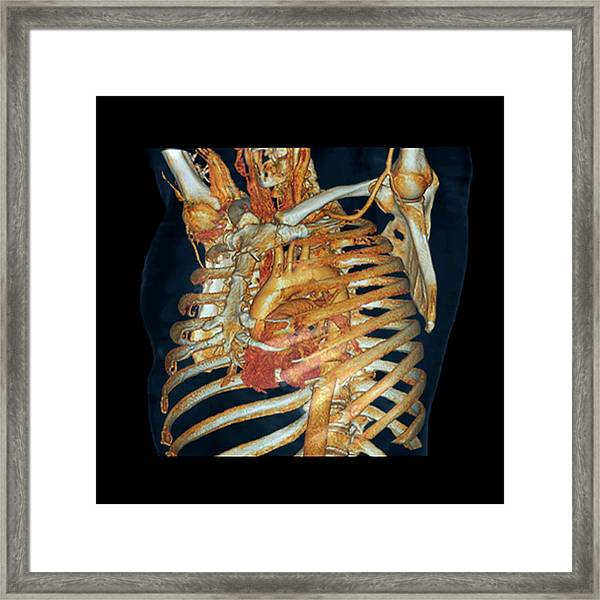 Normal Heart And Aorta Framed Print