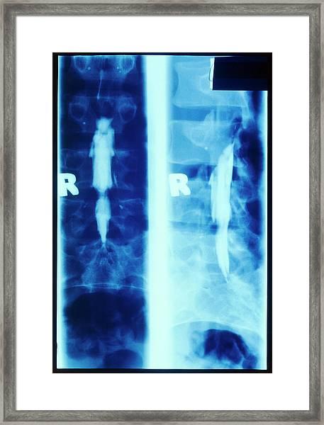 Oil Myelogram Showing Slipped Lumbar Disc Framed Print