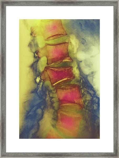 Osteoporosis Framed Print