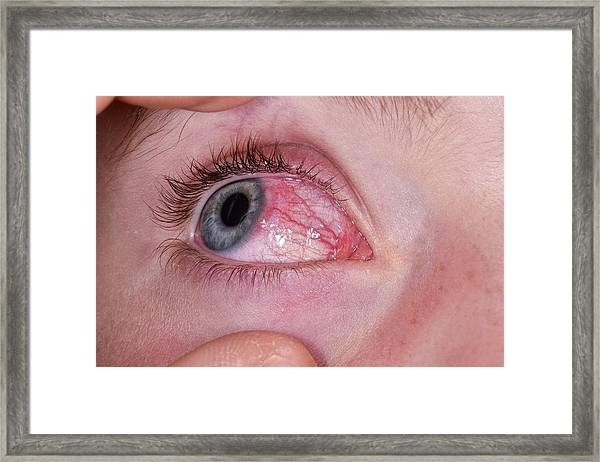 Phlyctenulosis Framed Print by Dr P. Marazzi/science Photo Library