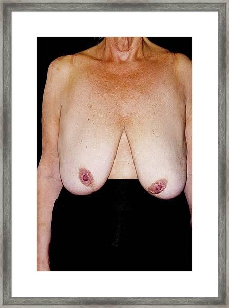 Sagging Breasts Framed Print