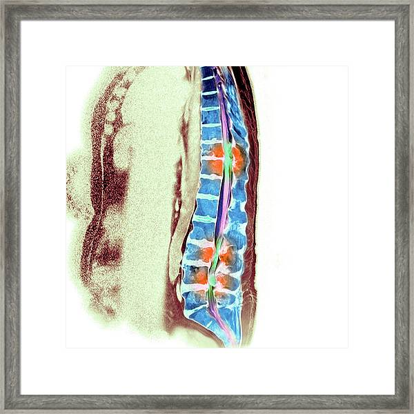 Secondary Bone Cancer Framed Print