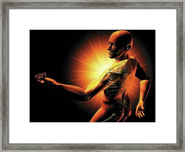 Shoulder Pain Framed Print
