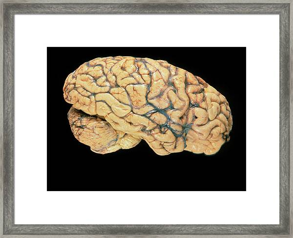 Side View Of A Healthy Human Brain Framed Print