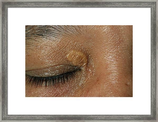 Skin Nodule Framed Print