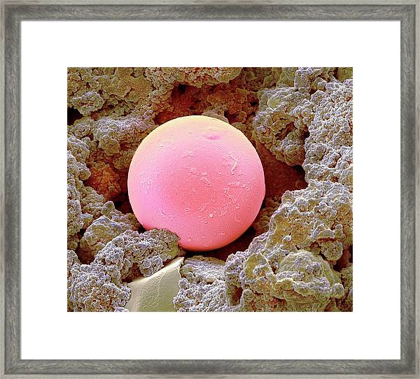 Sunscreen Microsphere Framed Print by Steve Gschmeissner