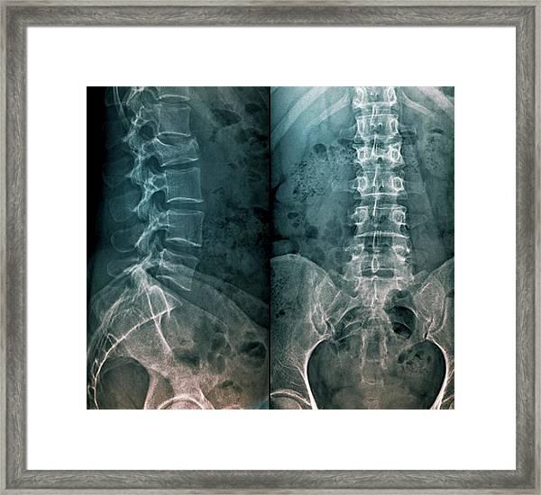 Untreated Fractured Vertebra Framed Print