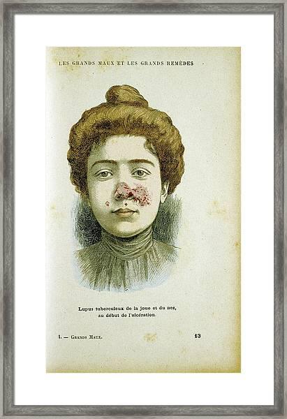 Woman With Lupus Vulgaris Framed Print