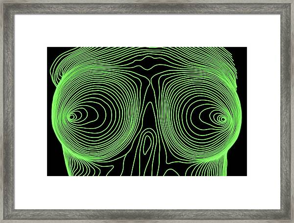 Woman's Breasts After Cosmetic Surgery Framed Print