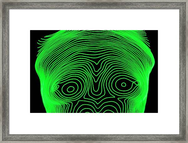 Woman's Breasts Prior To Cosmetic Surgery Framed Print