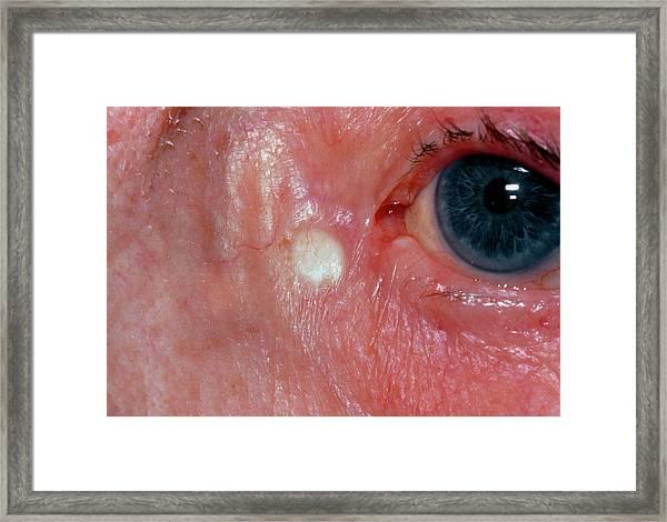 Xanthelasma Found Close To Elderly Woman's Eyelid Framed Print
