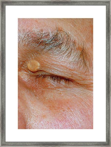 Xanthelasma Framed Print
