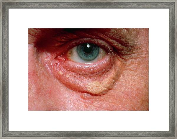 Yellowish Swelling Of Lower Eyelid Framed Print