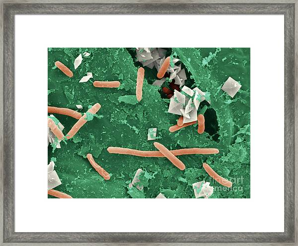 Baby Spinach Infected With E. Coli Framed Print