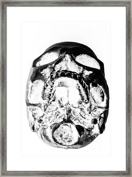 Skulls And Dental Records Framed Print